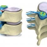 Prolapse of intervertebral disc